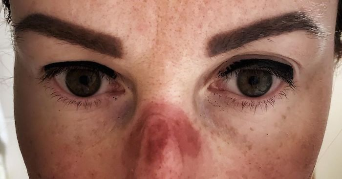 A Czech Nurse Shares What Her Face Looks Like After Working At A Hospital