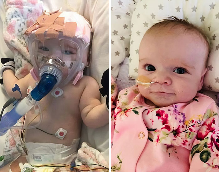 6-Month-Old Baby Survives Coronavirus After Fighting Heart Conditions And Lung Problems