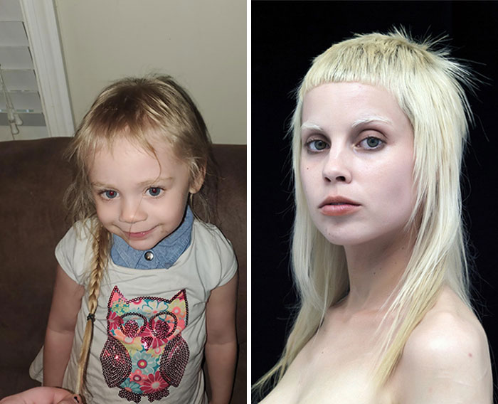 My Daughter Found Scissors And Cut Her Hair. Now She Looks Like Yolandi