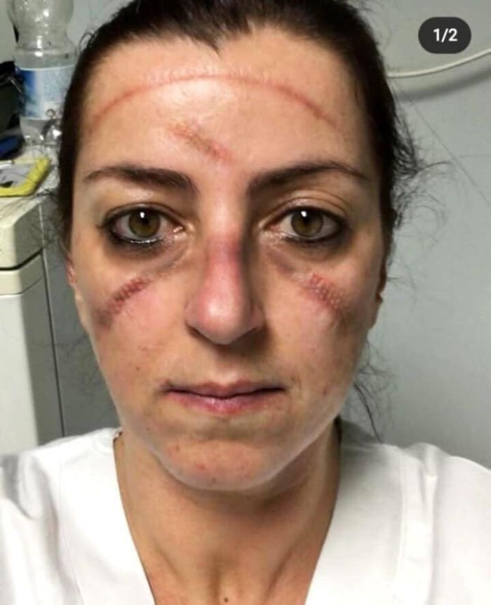An Unnamed, Unidentified Medical Professional Is Seen With Dark Bruises Covering Her Face