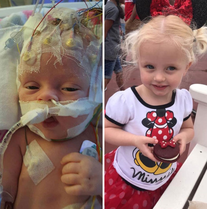 Doctors Told Us To Make Preparations For Losing Her, But After 5 Brain Surgeries My Baby Had Her First Disney Trip At 3 Years Old