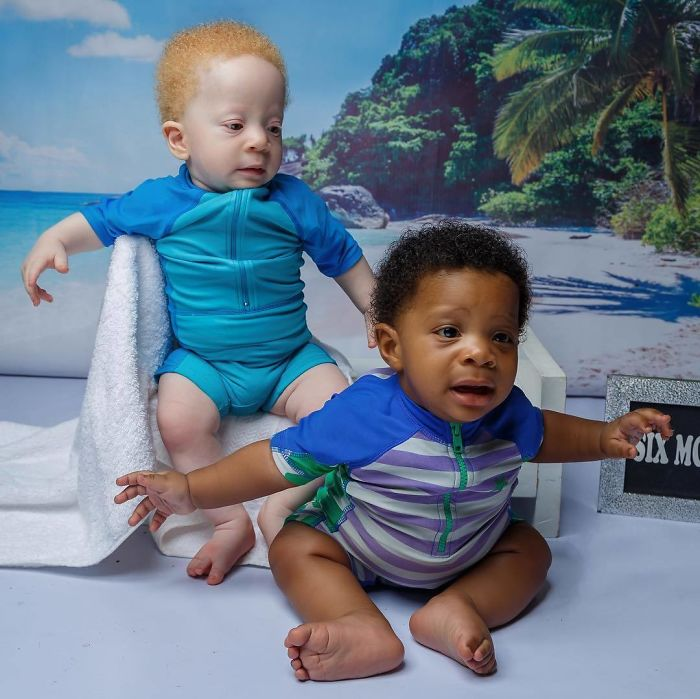 Mom Of Black And White Twins Often Gets Asked Which One Of The Boys Is Hers