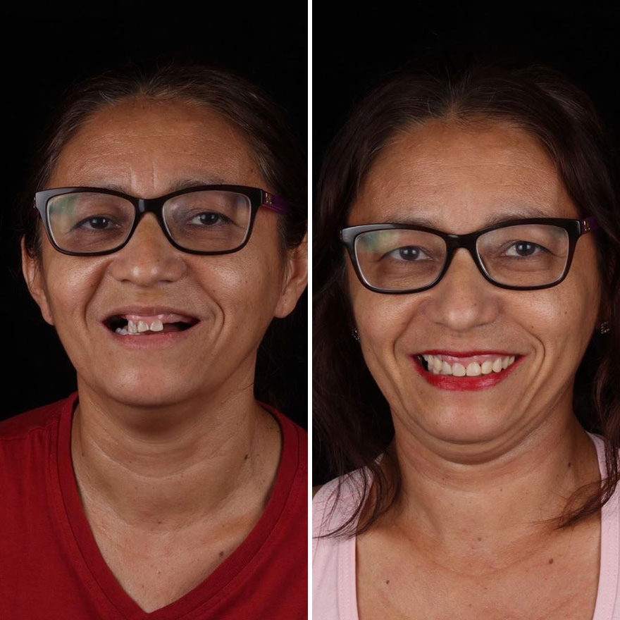Brazilian Dentist Continues To Travel The World Spreading Smiles To Needy People