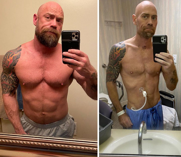 Man Shares An Eye-Opening Pic Showing What Covid-19 Did To Him After 6 Weeks In A Hospital
