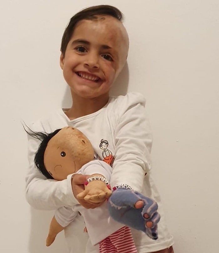 This Woman Is Creating Look-Alike Dolls For Kids With Disabilities And It's Touching Everyone's Hearts