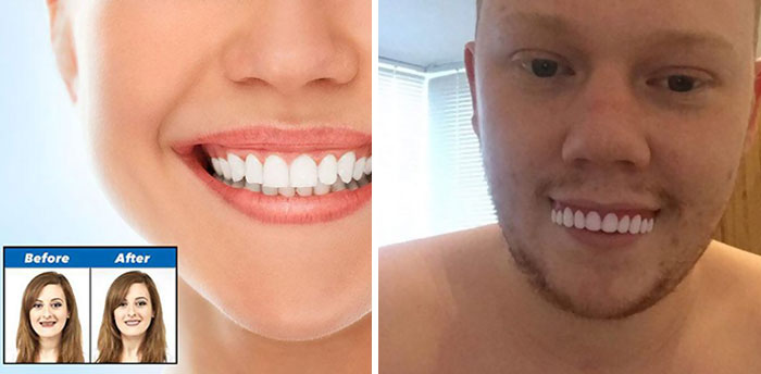 Don't Buy Veneers Online