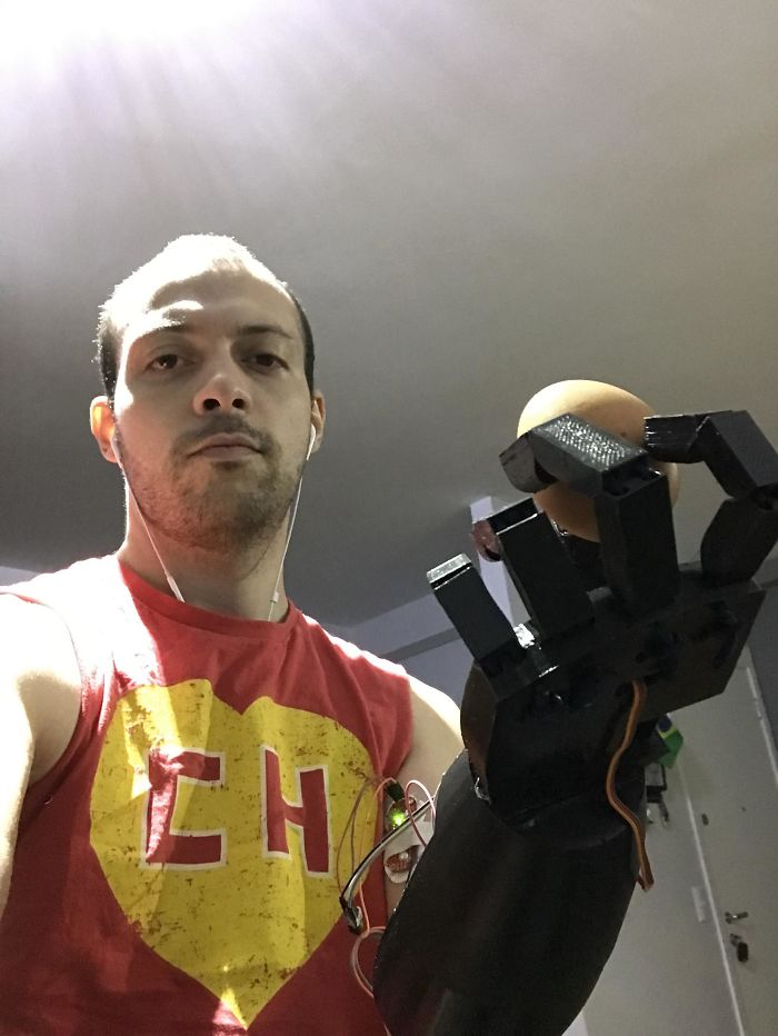 Was Born Without An Arm So I Built Myself My Own Eletronic 3D Printed Arm. This Is Me Holding An Egg