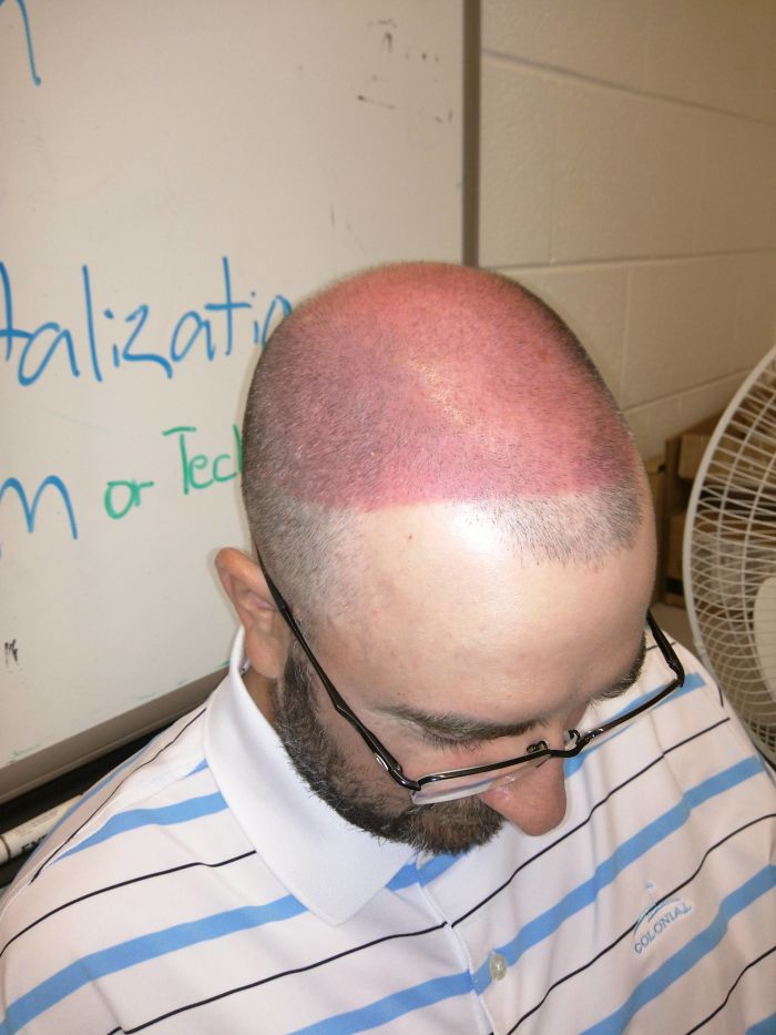 Co-Worker Shaved His Head, Then Went Golfing, And Decided To Wear A Visor