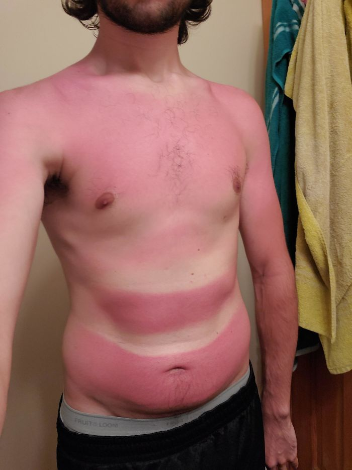 Long Kayaking Trip + Belly Rolls = Most Inconsistent Sunburn Ever