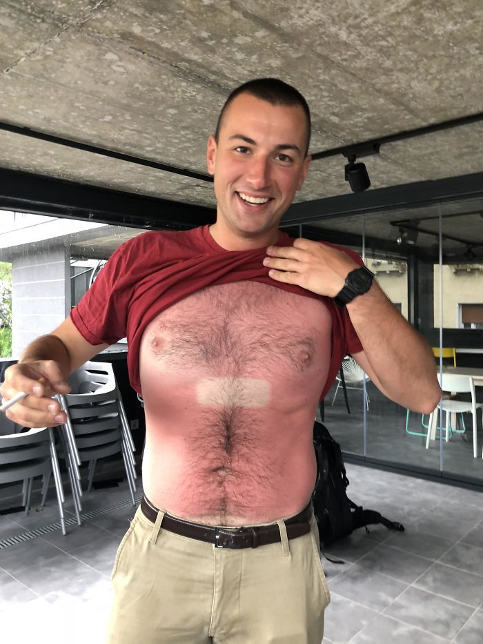 Met A Guy Last Summer That Fell Asleep In The Sun With His Phone On His Chest