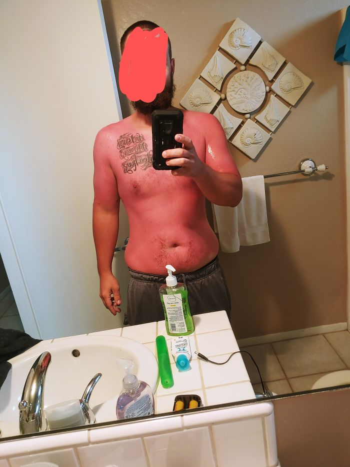 When You Are From Arizona And Think 70 Degrees On The Beach In Cali Doesn't Require Sunscreen. I. Hurt