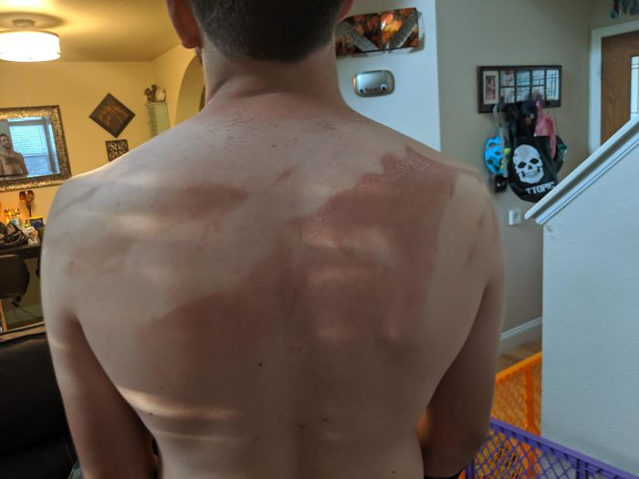 Stubborn Husband Said He Didn't Need My Help Putting Sunscreen On His Back