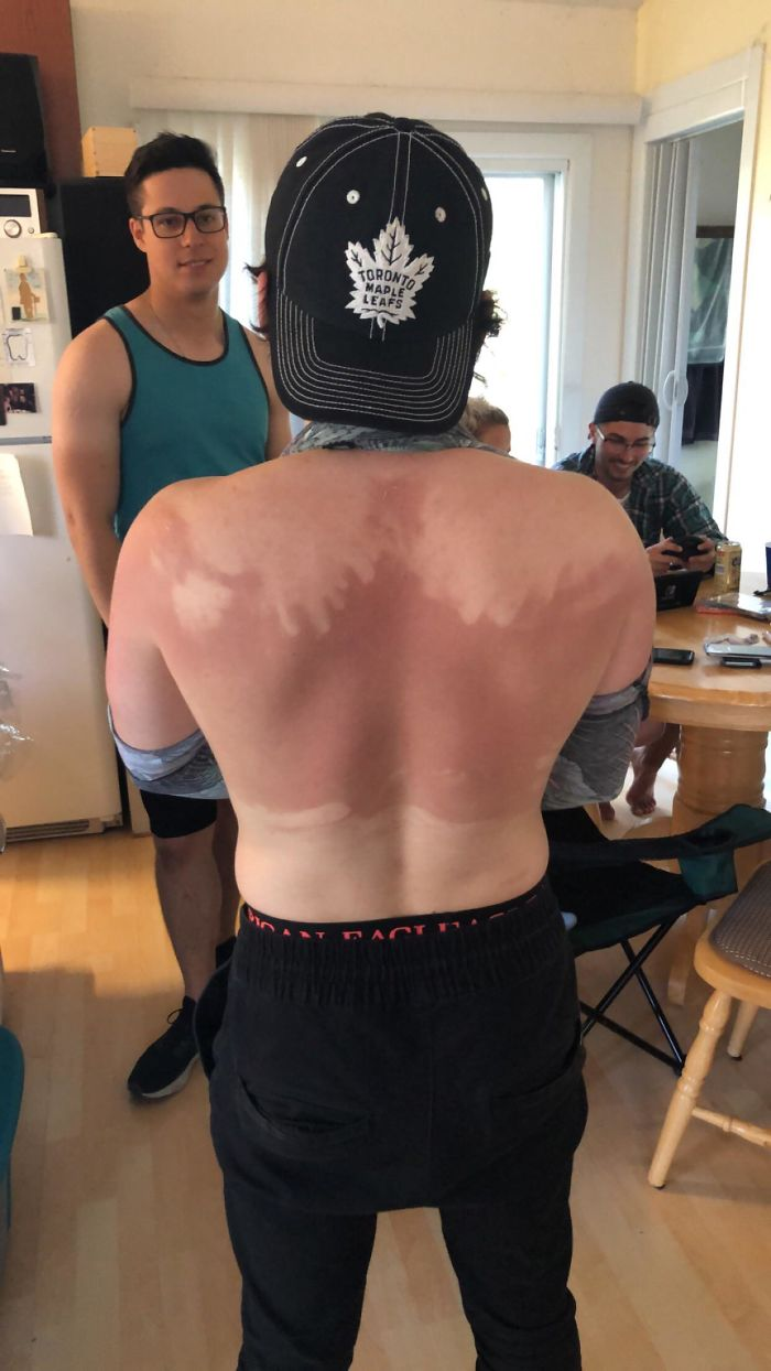 My Friend Refused To Ask For Help With Putting Sunscreen On, This Is The Result