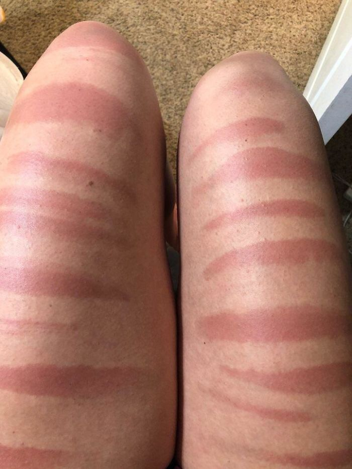 My Cousin's Legs After A Day In The Sun In Ripped Jeans