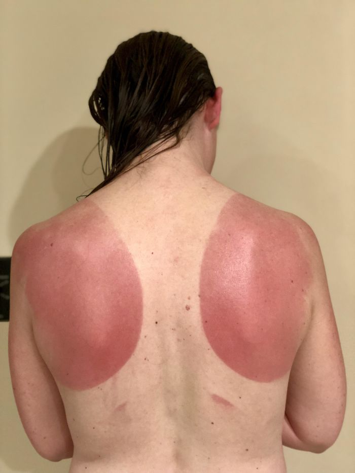 This Is What Happens When You Go On A Bike Ride When It's 100 Degrees Outside Without The Proper Sunscreen