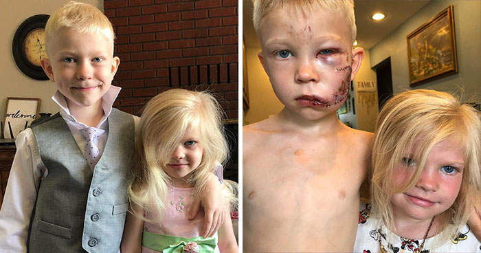 6-Year-Old Superhero Saves Sister From Dog Attack, Gets 90 Stitches And Praise From The Avengers