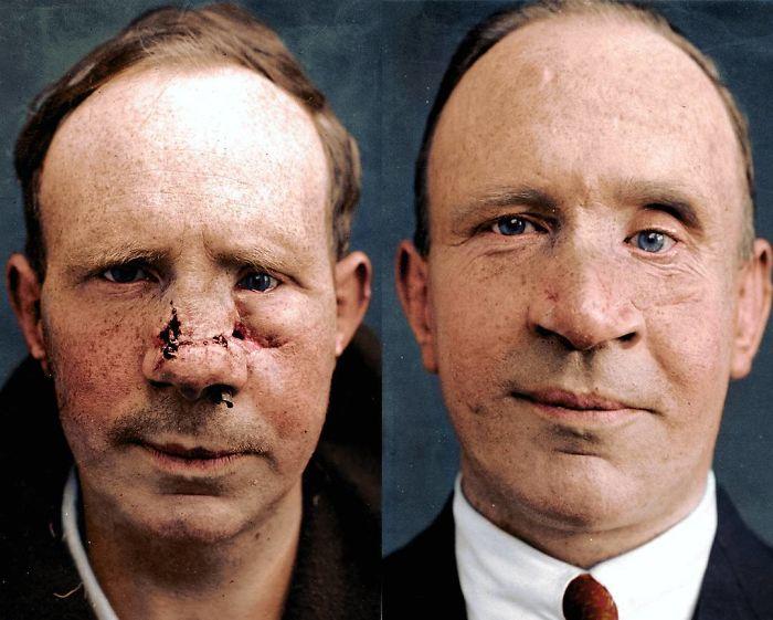 Frederick Charles Stacey tras la cirugía plástica para tratar sus heridas en la 1ª Guerra Mundial