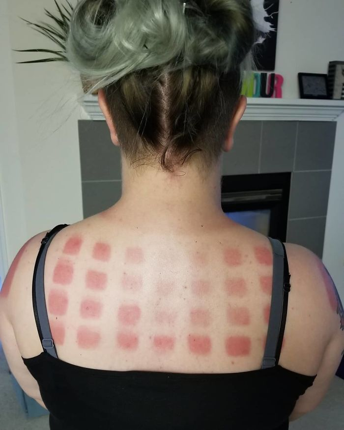 What Happens When You're Super White And You Walked Around All Day In A Shirt With Cutout Squares. And This Was With Multiple Applications Of Sunscreen
