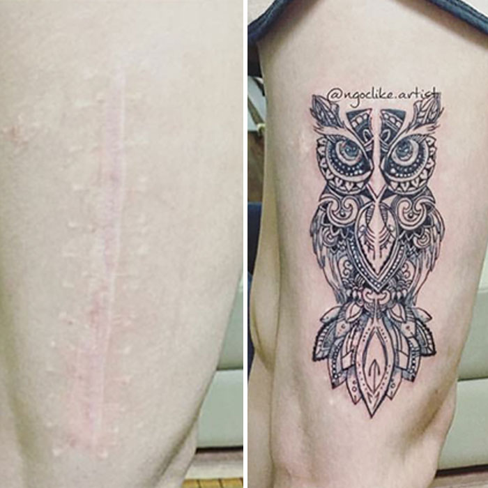 Tattoo Artist Makes Real Works Of Art Covering Sad Scars