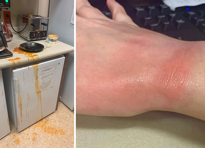 My Submission For Dumbest Way To Injure Yourself: I Burnt My Hand Taking Tomato Soup Out Of The Microwave. The Toast I Was Making Popped Up And It Scared Me