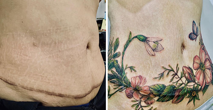 30 Times People Asked To Cover Up Their Scars, And This Tattoo Artist Nailed It