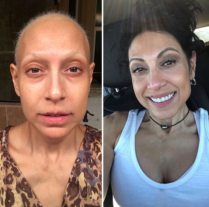 During Her Battle With Cancer And After She Beat It