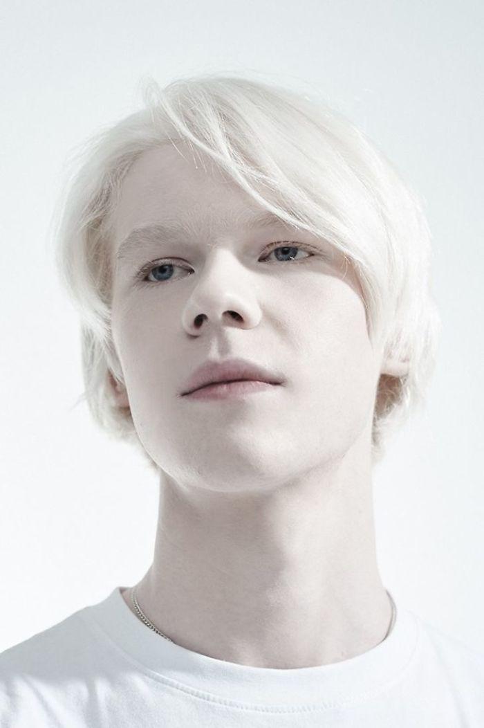 Ilya, An Albino