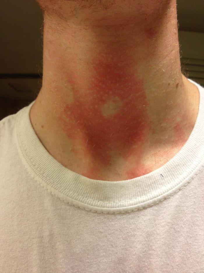 Apparently My Adam's Apple Provided Just Enough Shade To Prevent A Small Portion Of My Neck From Getting Sunburned