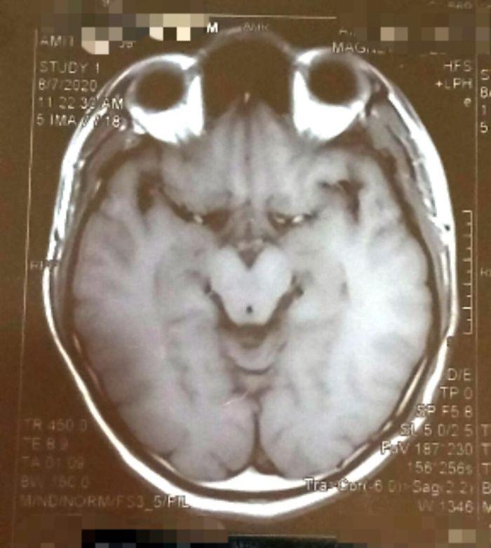 La resonancia de mi cerebro se parece al Grinch