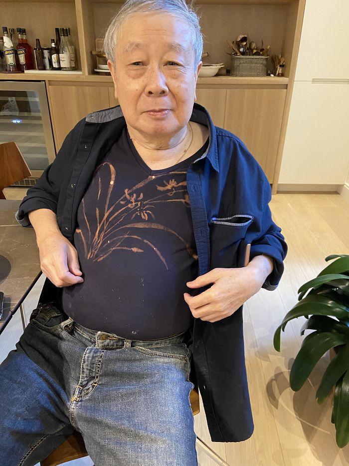 Se salpicó la camiseta con lejía y decidió arreglarlo con más