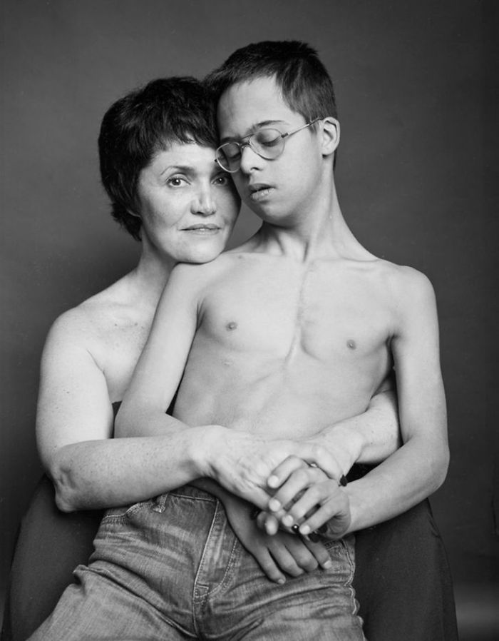 Mom Tanya And Son Lev, 15 Years Old, Down Syndrome
