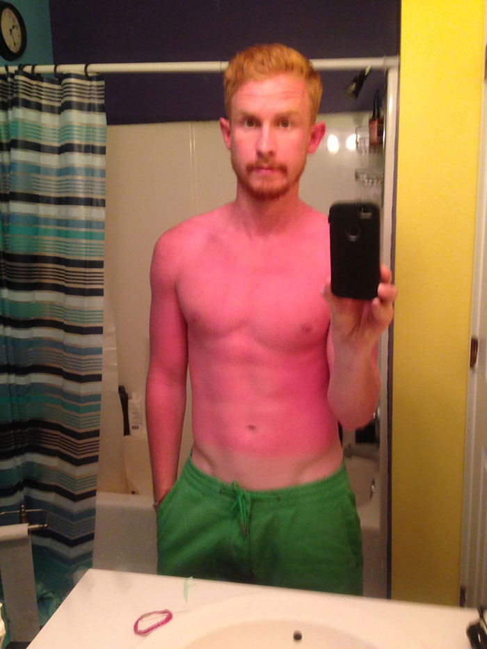 What Could Go Wrong If I Forget The Sunscreen?