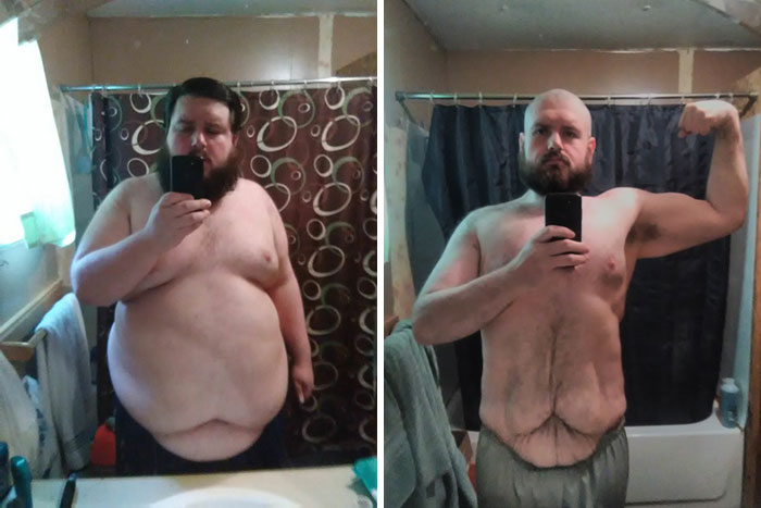 1 Year Progress. 425 Lbs To 249 Lbs Through Diet And Exercise