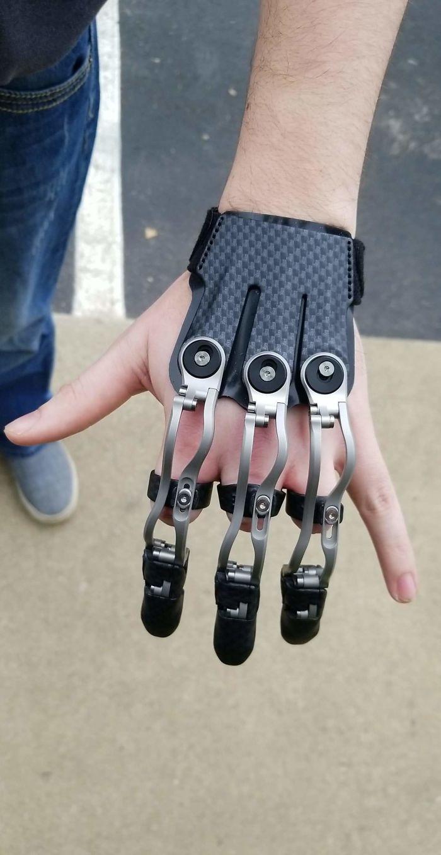 Por fin tengo mi prótesis