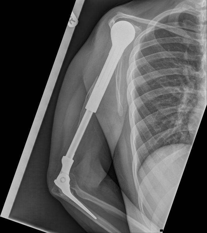 X-Ray Of My Metal Arm