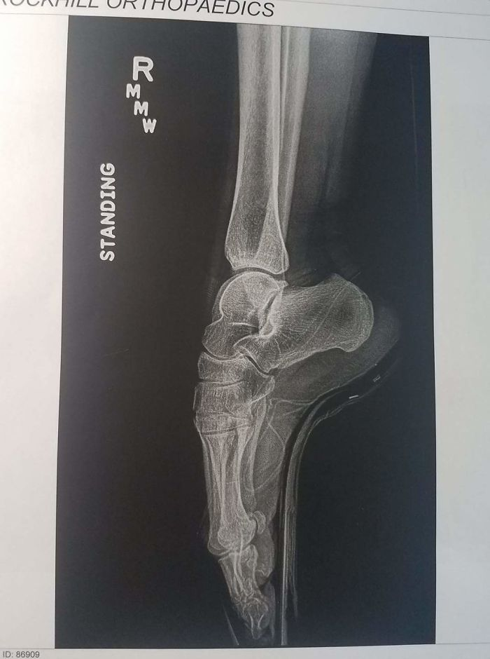 My Wife's A Ballerina, This Is Her X-Ray While En Pointe