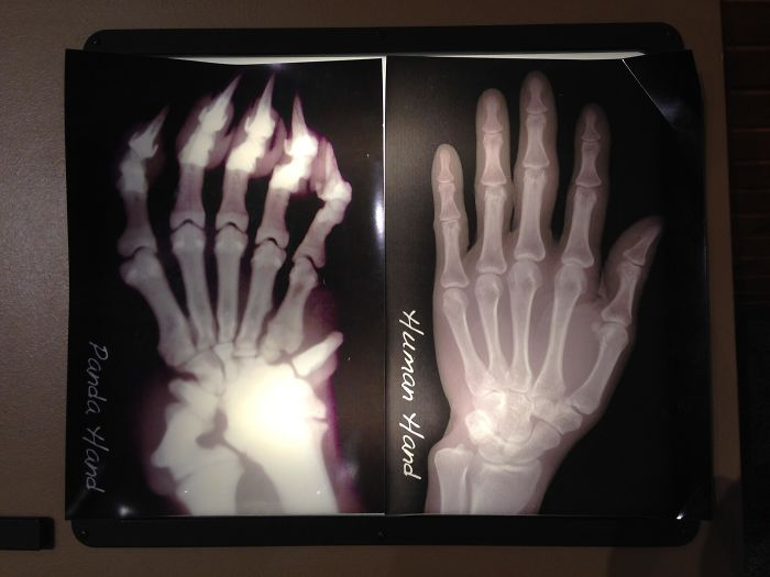 """X-Ray Of A Panda Hand vs. A Human Hand; Pandas Have An Extra """"Thumb"""" To Help Grip Bamboo Stalks"""