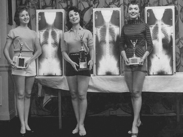 Miss Correct Posture, 1956. At A Chiropractic Convention In Chicago, The Contest Winners Were Picked For The Beauty Of Their X-Rays And Their Standing Posture