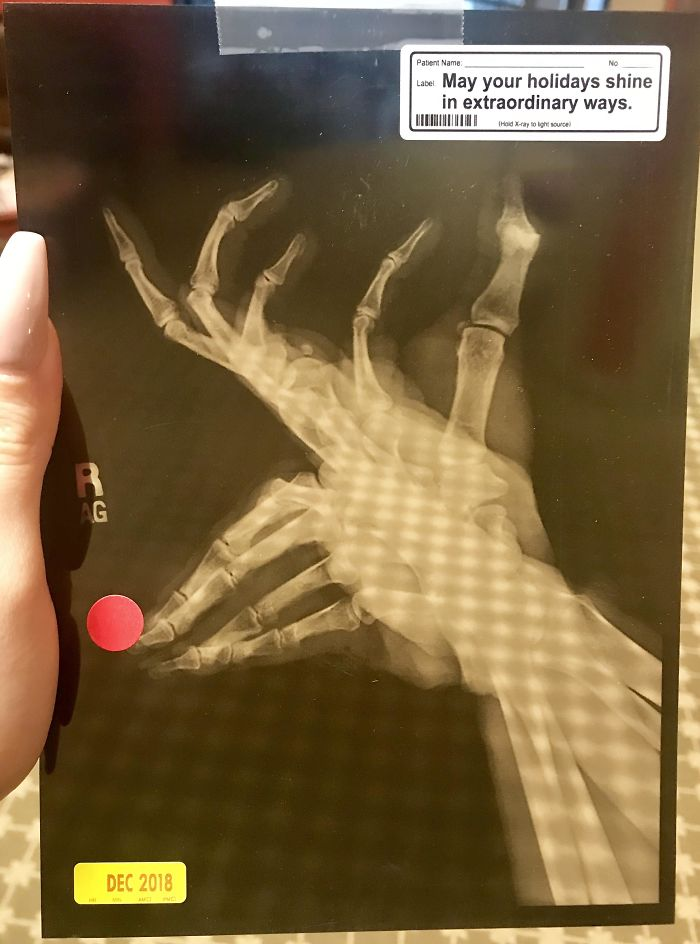 Doctor's Office Christmas Card Is An X-Ray Made To Look Like Rudolph
