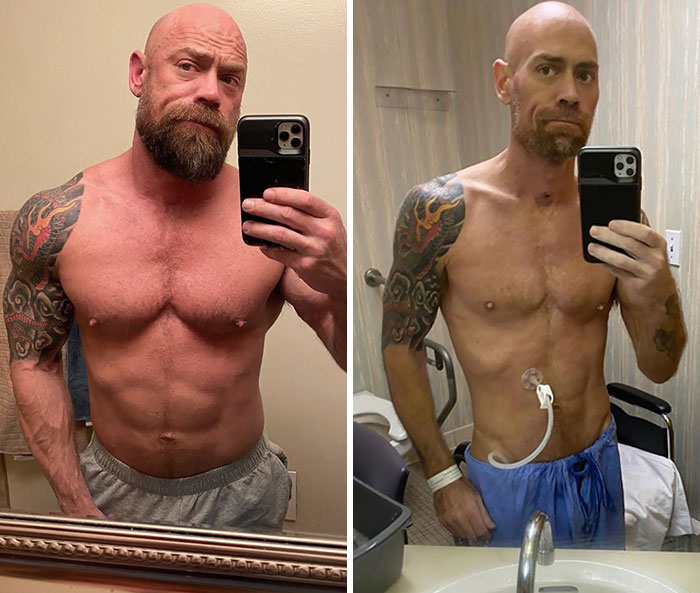 What Mike Schultz Looked Like After Battling Covid-19 For 6 Weeks In The Hospital