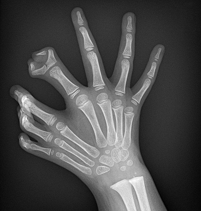 Polydactyl Claw X-Ray
