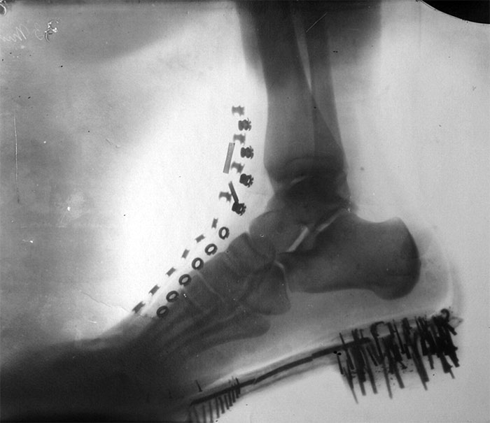Nikola Tesla's Foot In A Shoe, By Himself. Tesla Obtained The Image In 1896 With X-Rays Generated By His Own Vacuum Tube, Similar To Lenard's Tube, At A Distance Of 8 Feet