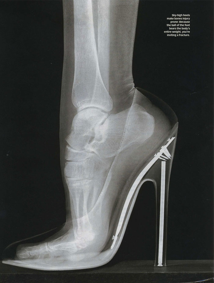 X-Ray Of A Foot In Stilettos