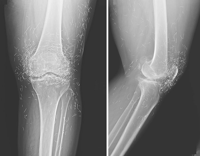 Ineffective Gold Thread Acupuncture Treatment For Osteoarthritis Of The Left Knee