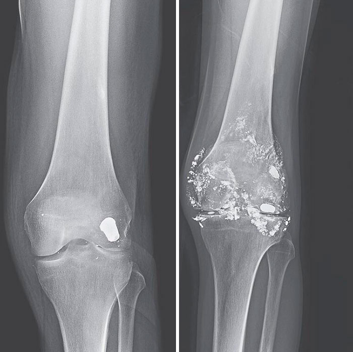Bullet In Knee After 14 Years. A 46-Year-Old Man With A Prior Gunshot Wound To The Left Knee Presented With Worsening Knee Pain