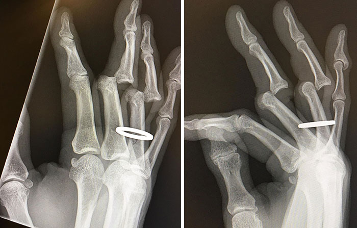 Just Received My X-Rays From Saturday's Debacle. They Had To Cut My Ring Off Before Returning My Bones To Their Full Upright And Locked Position