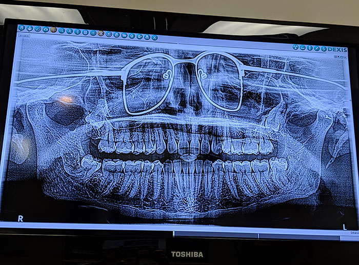 I Got A Panoramic X-Ray Of My Teeth The Other Day. The Dentist Forgot To Have Me Remove My Glasses