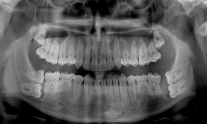 I Took An X-Ray Today And They Told Me That My Wisdom Teeth Are Pretty Strange
