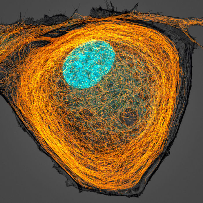 Microtubules(orange) inside a cell