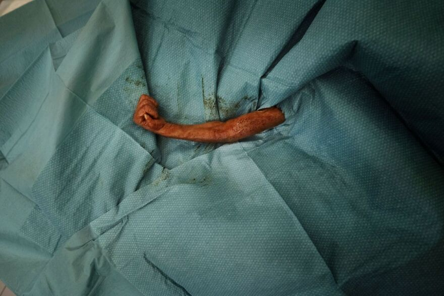 Baby Orangutan Surgery (Honorable Mention In Documentary & Photojournalism Category)